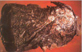 Plíce kuřáka (rakovina plic)